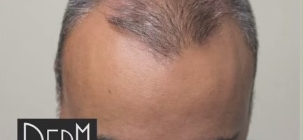 Patient Before His Body Hair Transplant For Strip Scar and Global Coverage