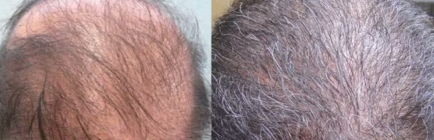 Repair of Weird Growth After Patient's First Hair Transplant