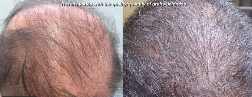 poor growth after a hair transplant can be avoided by using an experience doctor and clinic