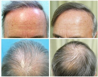Body Hair Transplant Repairs Botched Surgery Results