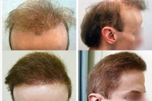 The Worst Hair Transplant Repair Patient Testimonial by Anonymous Before and after Dr U repair