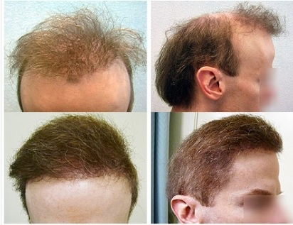 Scalp reduction resulted in the elevation of hairline around the ears in the top right hand photos fixed by Dr U