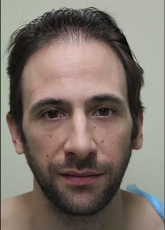 Celebrity Bernardo de Paula Before His Hair Transplant Surgery