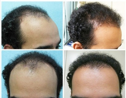 Conservative Hairline Restoration With FUE