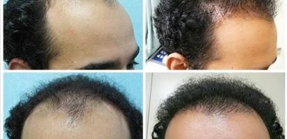 Hair Transplant Images| FUE Patients