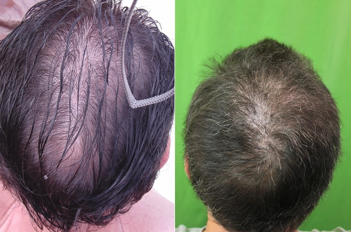 Crown Hair Restoration Dermhair Clinic Los Angeles 1 310 318 1500