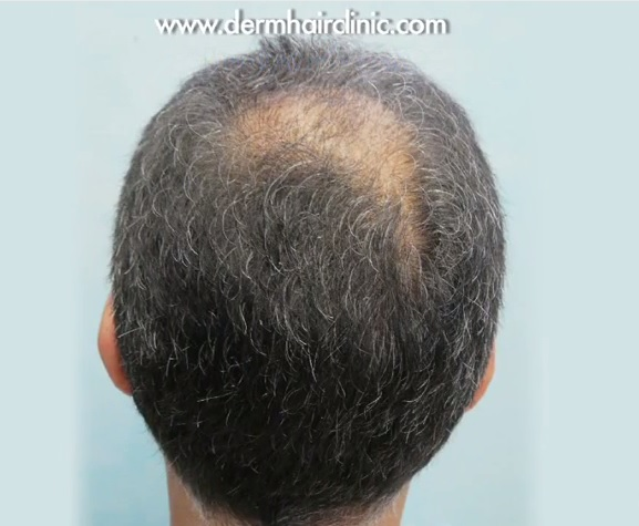 Patient Before His Crown Hair Restoration Surgery