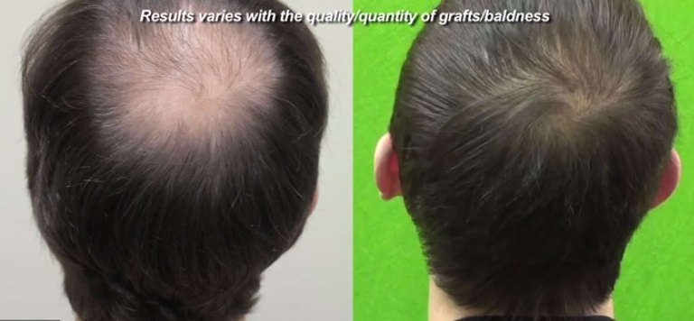 Hair Transplant Cost| Hair Transplant Prices| Price Per Graft