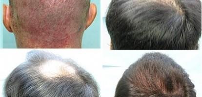 1500 FUE Grafts Restores Crown Hair