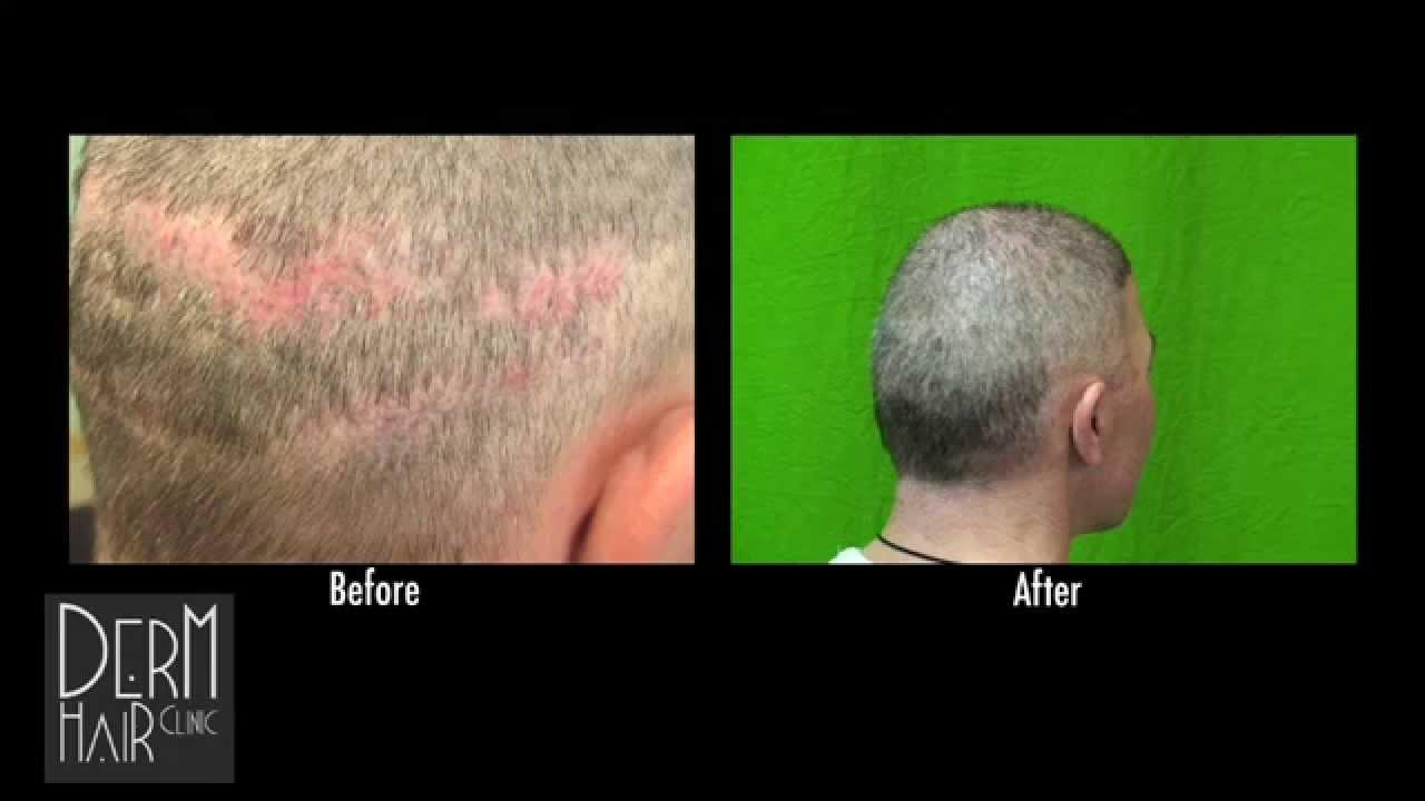 Short Hair Cut After Repair Of Strip Surgery Scar With Beard Hair