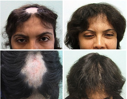 Female Patient With Hair Loss Due to Lupus