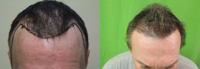 Hair Transplantation General FAQ