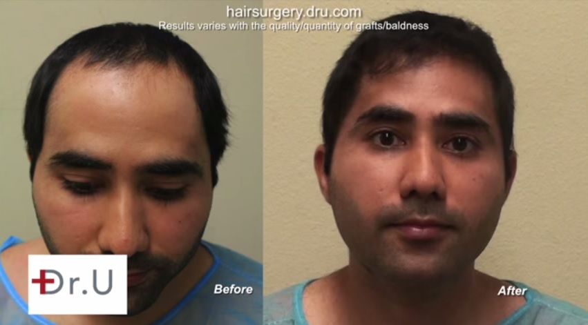 FUE Hair Transplant Pictures| Patient Examples