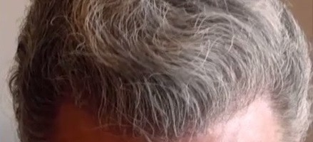 Body Hair Transplant Results|Final Hairline and Temples