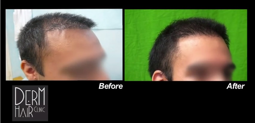 Side View of FUE Hairline Repair