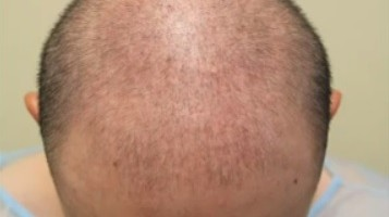 Patient Prior to His FUE Hair Transplant