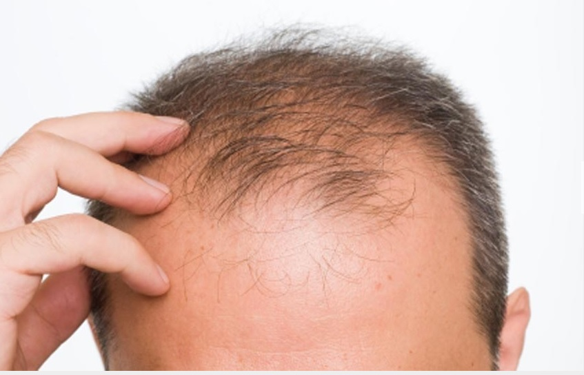 What determines DHT sensitivity and hair loss ?