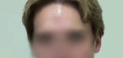 Patient's Final Results After His FUE Hairline Restoration