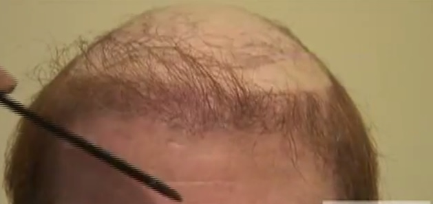 Hair Loss From Hair Piece - Repair Surgery Case
