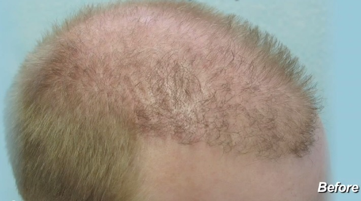 Image of Young Hair Repair Patient Before Surgery