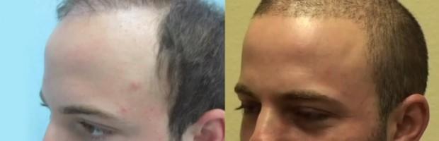 Hair Restoration Videos| Patient Results