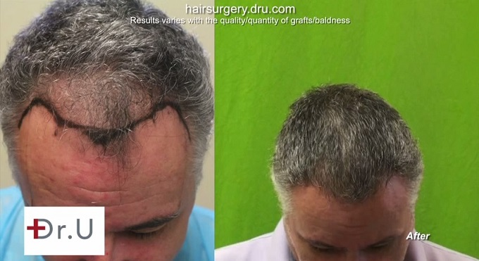 FUE For Hairline and Temples| Mature Hairline