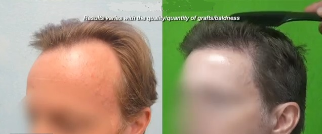 Hair Transplant Surgery and Pain Management : FUE Hair transplant procedures are relatively pain less