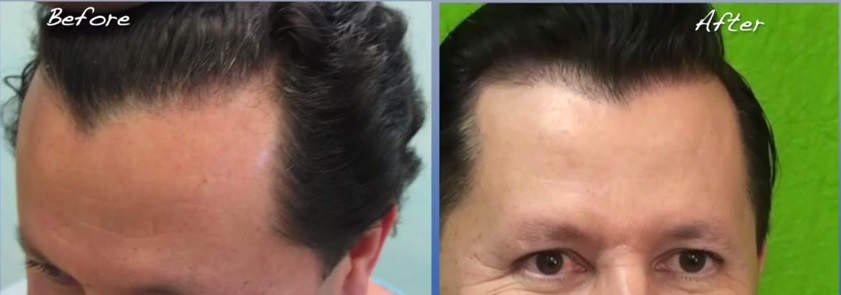 Reconstructing a Natural Looking Hairline| Facts For Patients