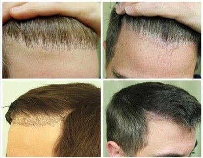 Follicular Unit Extraction Info| Different Types of Patient Challenges