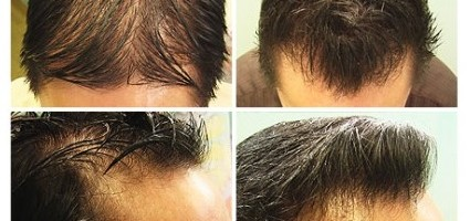 FUE Hair Transplant|Asian Patients|Ethnic Differences