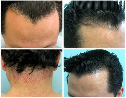 Using Nape Hair by FUE uGraft to Create Natural Hairlines