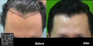 Study on Creation of Natural Hairlines and Temples Using Nape Hair before and after photo