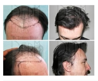 Hairline planning before and after Los Angeles UGraft FUE hair restoration