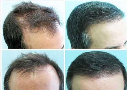 Restoring Hairline With 5000 Graft BHT Surgery