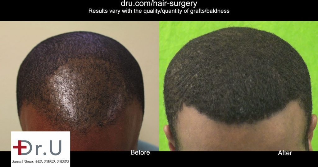 2320 Grafts Used for African American FUE Hair Transplant Repair