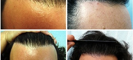 Restoring the Hairline
