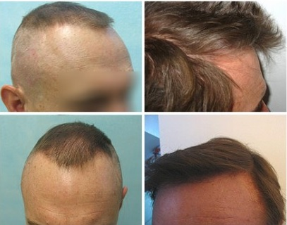 Best Hair Restoration Surgeon in the World| What to Look For. natural hairline reconstruction