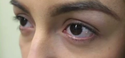 Patient Seeking Longer Eyelashes ThroughFUE Surgery