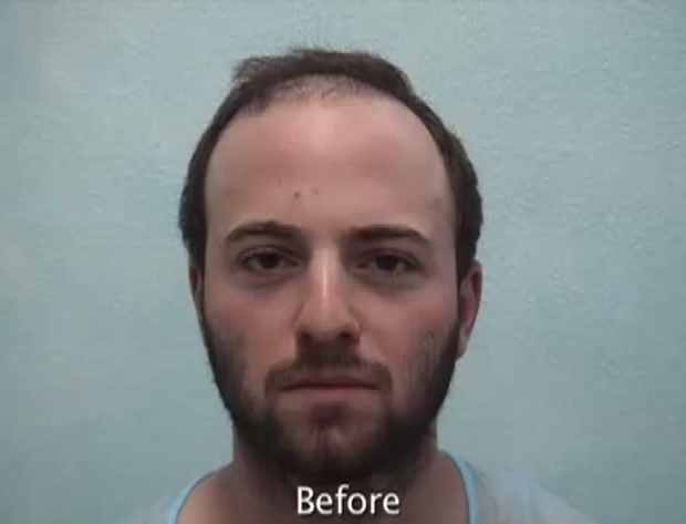 Patient Before His Beard Hair Transplant Surgery