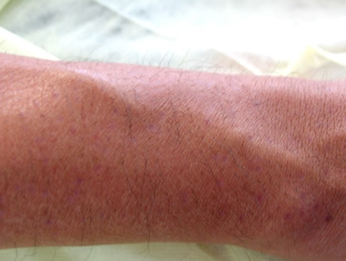 BHT Donor Healing| Redness| Patients With Lighter Skin