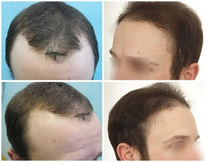 Hairline Restoration With Donor Grafts From Scalp