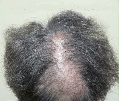 Scalp Reduction and Slot Formation - Hair Restoration Deformity