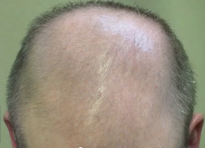 Dihydrotestosterone. Male Pattern Baldness and DHT