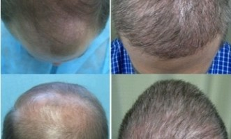 Body Hair Grafts | Single Haired Follicles