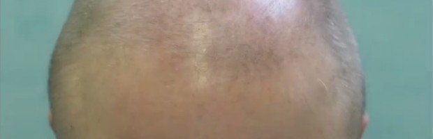 Severely Bald Norwood 6 Patient Before Body Hair Transplant
