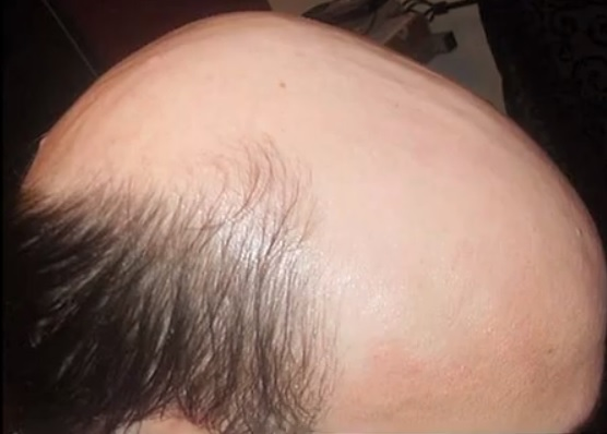 Hair Transplant Cost| Info For Patients