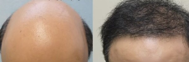 Hair Restoration Graft Count