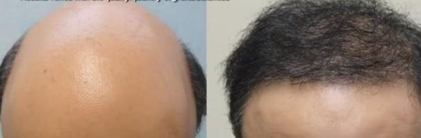 Hair Transplant Procedures  New Possibilities