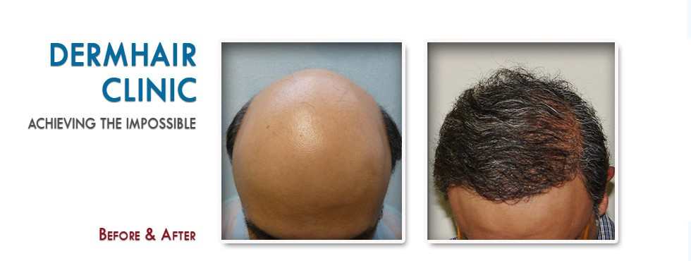 Restoration of severely bald patient through body hair transplant
