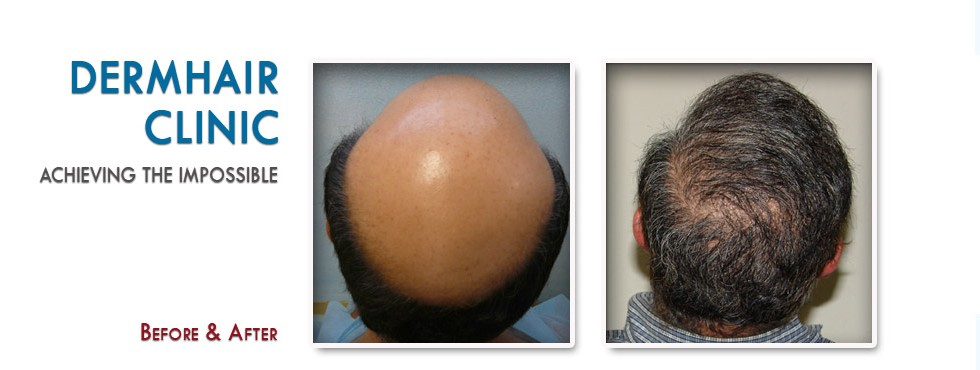 full coverage of severe baldness through body hair to head transplant